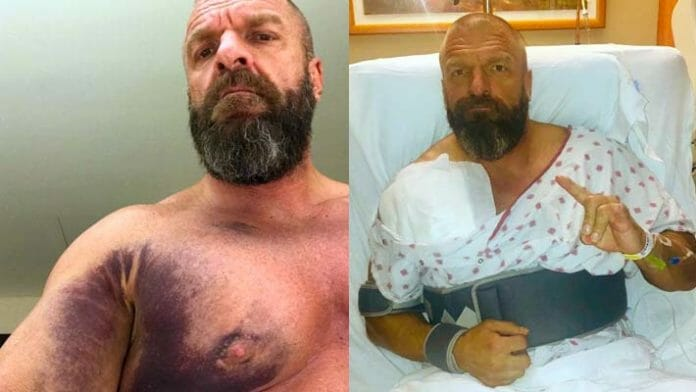Triple H after tearing his pectoral muscle, and after surgery.