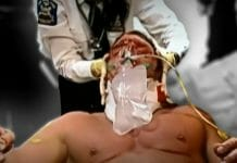 Paramedics tend to Triple H after his injury took place.