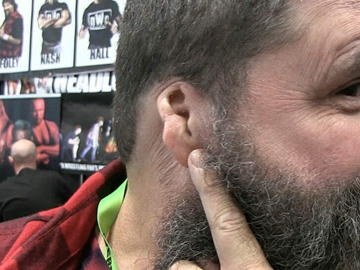 Mick Foley proudly displaying the missing part of his ear.