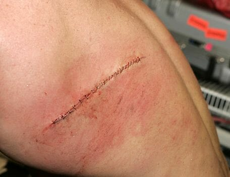 Bob Holly showing off his back after stitched up.